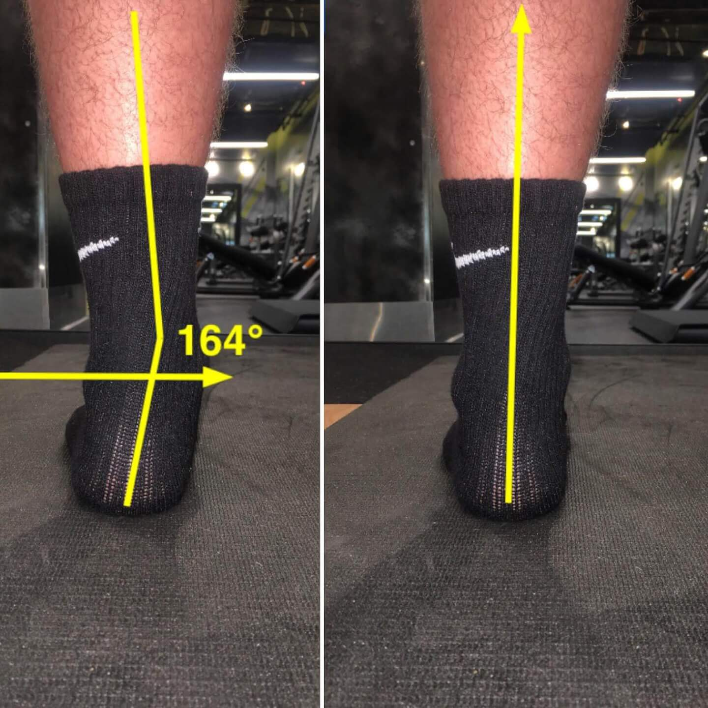 Ankle Over Pronation - Flat Feet