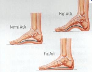 Feet Arch Types - Flat Feet